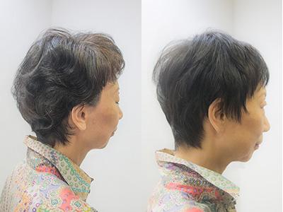 髪の細いくせ毛の縮毛矯正