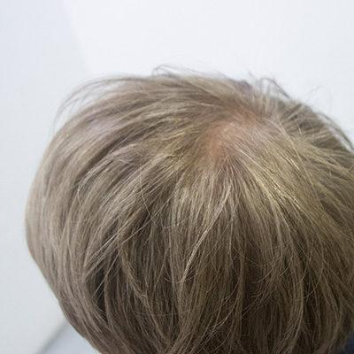 白髪を活かした白髪染めを推奨する東京の美容室アフター根元