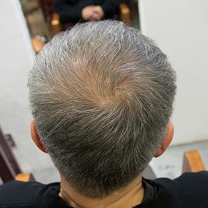 発毛剤デンサーヘア12ヶ月後