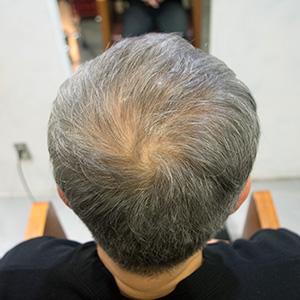 毛剤デンサーヘア4ヶ月後