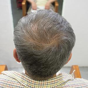 発毛剤デンサーヘア8ヶ月後