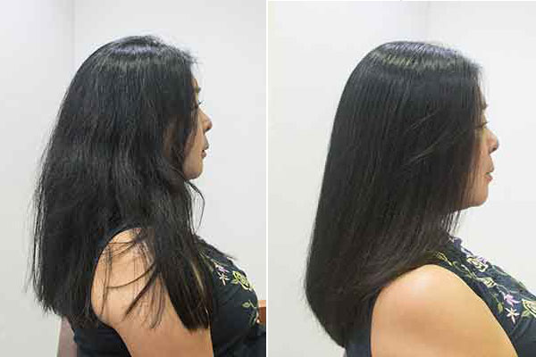 強いくせ毛も自然でサラサラ縮毛矯正