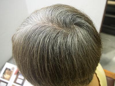 白髪染めグレイ ビフォー画像