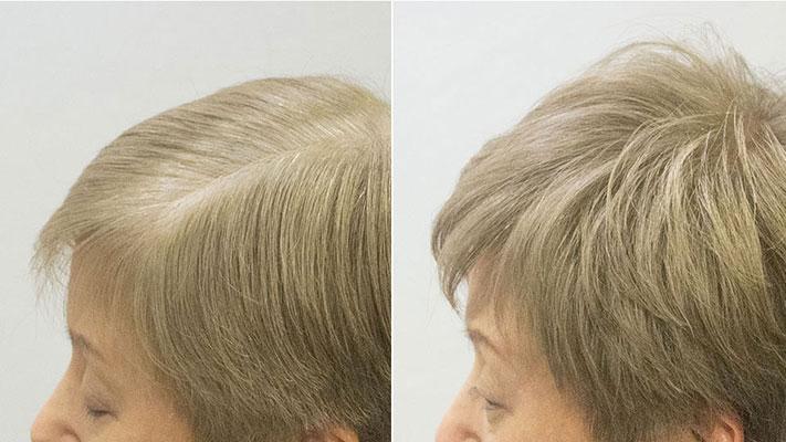 明るくて粋な白髪染めベージュアッシュベース