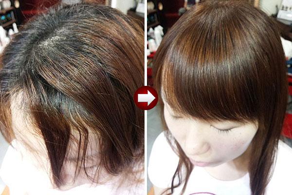 前髪のくせ毛の縮毛矯正