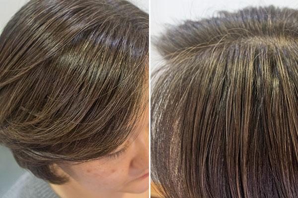 低刺激で白髪が目立たない染め方