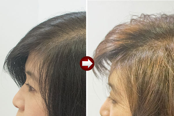 グレーヘアーの40代の白髪を明るく染め直す