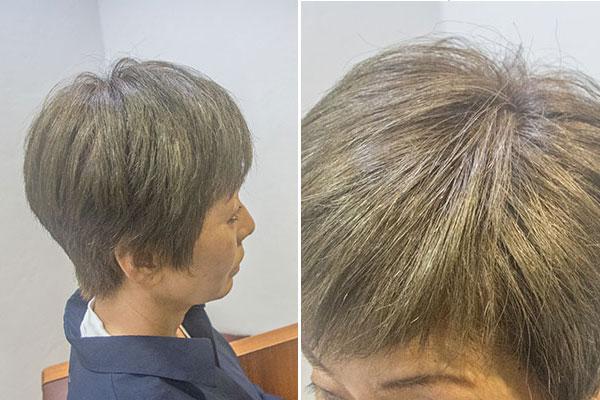 グレイヘアに移行する前の白髪染め白髪7割