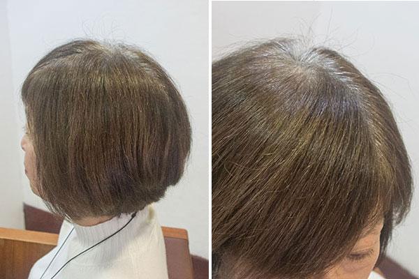 頻繁な白髪染めに疲れグレイヘアにするにか迷う状態