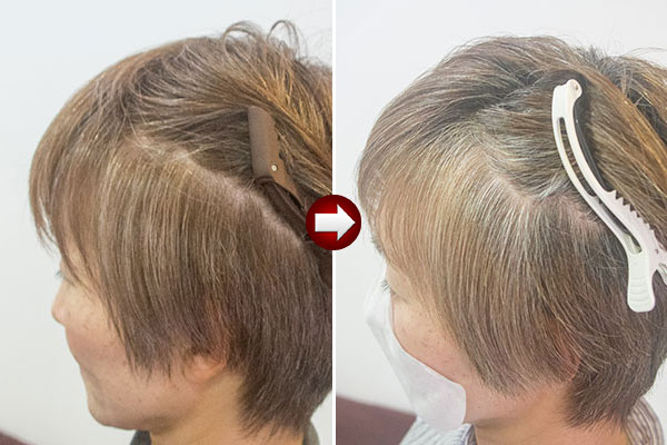 白髪染めの境目をぼかす白髪染め2ヶ月後